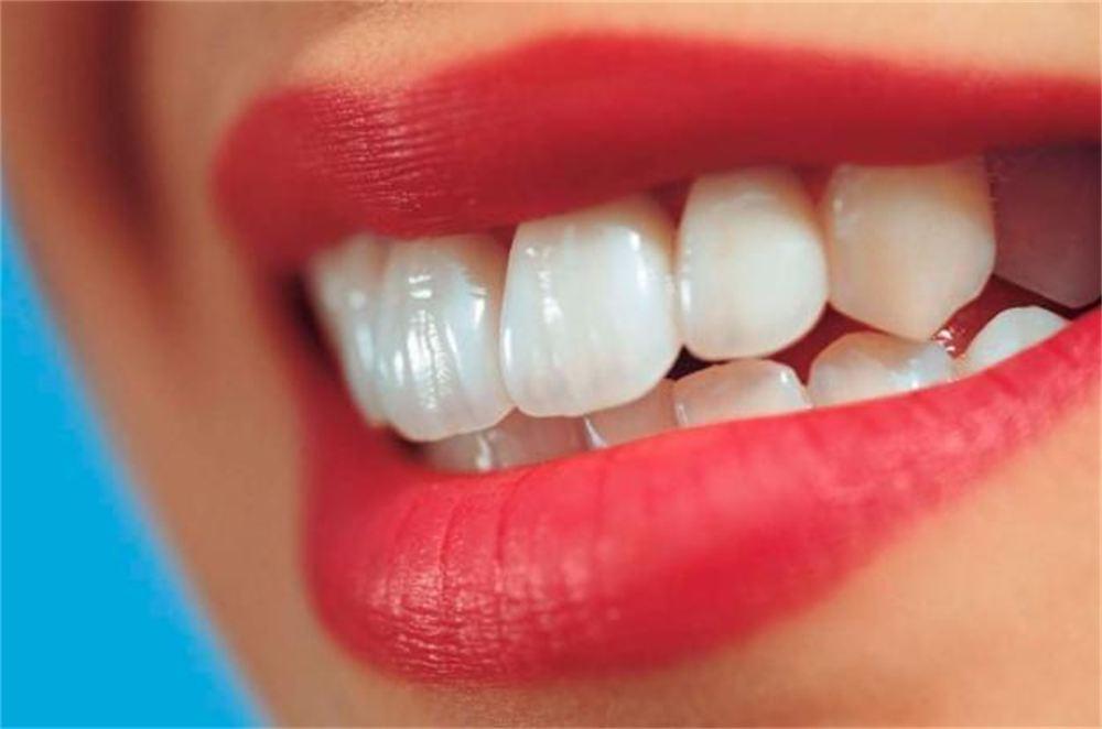 روش های زیبایی دندان